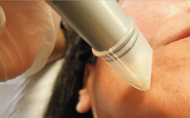 micro needling face treatment