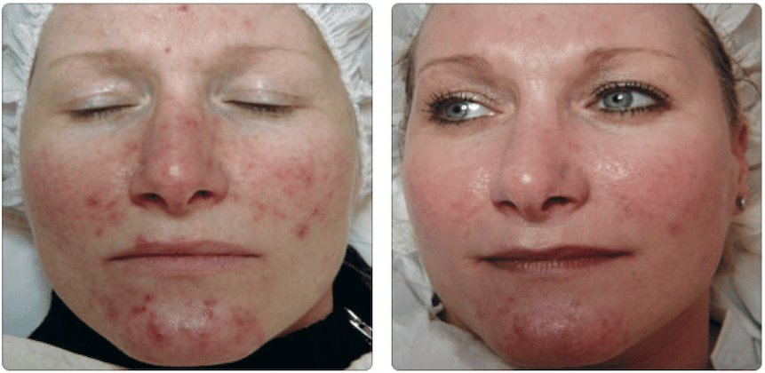 acne laser treatment brighton