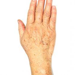 Skin rejuenation