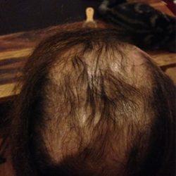 scalp-treatment